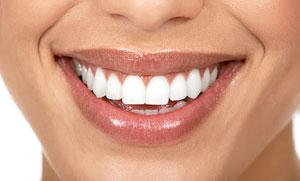 blanchiment des dents dans un bar à sourire